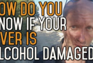 How Do I Know If My Liver Has Been Damaged by Alcohol?