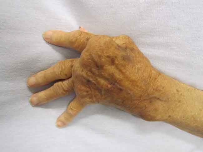 Alcohol and Arthritis